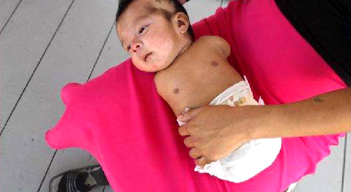 baby born with birth defect